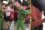 Thêm chiến sĩ công an bị tài xế xe tải chống lệnh, tông bị thương