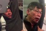 Bác sĩ gốc Việt David Dao bị gãy mũi và răng, phải phẫu thuật chỉnh hình