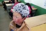 'Cậu bé băng giá' ở Trung Quốc được ủng hộ 2,6 triệu USD