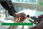 Người đàn ông Ấn Độ quyết định cắt bỏ bộ móng tay dài 9m sau 66 năm gìn giữ