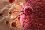 Kỳ tích: Mẹ sinh con thành công dù đang hôn mê, ung thư di căn lên não