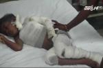 Bị bố đánh rơi vào đống than, bé 6 tuổi nguy kịch