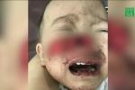 Video: Cha mẹ lơ là, 2 trẻ bị chó nhà cắn nghiêm trọng