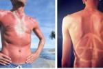 Nguy cơ ung thư từ trào lưu hình xăm rám nắng đang gây sốt