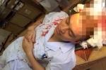 Bác sĩ lại bị đánh, máu nhuộm đỏ áo blouse, ngày Thầy thuốc năm nay buồn đến thế!