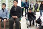 Nhói lòng cậu bé người Mông mất đi đôi chân vì căn bệnh máu không đông