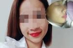 Cô gái Sài Gòn bị mù mắt, liệt nửa người sau tiêm filler nâng mũi