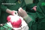 Cô gái mang khối u 4 kg trong bụng mà không biết