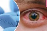 Video: Dùng Viagra quá liều, quý ông trả giá đắt