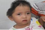 Xót xa bé gái 30 tháng tuổi mang 2 căn bệnh quái ác, đầu bị móp một bên