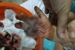 Bé 2 tuổi bị xích xe máy cắt đứt lìa bàn tay