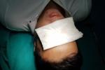 Đốt pháo đêm Giao thừa: Nhiều người nhập viện, có người mù vĩnh viễn, bỏng toàn thân