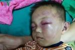 Bé trai 2 tuổi bị đánh đập dã man ở Nghệ An: Vì sao không truy cứu cha dượng?