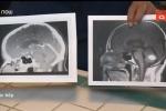 Kỳ diệu u não biến mất ngay trước ngày phẫu thuật