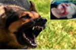 Người mẹ để con bị chó cắn rách mặt: Nỗi ám ảnh thường trực vì lo con bị dại