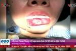 Bị hoại tử, phải cắt bỏ môi sau khi bơm chất làm mọng