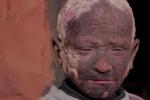 Thương xót cậu bé 11 tuổi 'hóa' xác ướp vì căn bệnh hiếm gặp