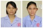 Phẫu thuật thành công cho thiếu nữ Đất Mỏ có một bên tai to bất thường