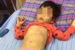 Bé 4 tuổi bị bầm tím thân thể ở Bắc Giang: Bác thông tin cô giáo đánh trẻ