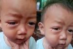 Mẹ hoảng hồn phát hiện con trai khóc ra 'máu'