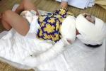 Thương tâm bé gái 9 tháng tuổi ngã vào bếp lửa khiến mặt biến dạng