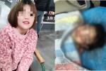 Cô gái 19 tuổi chết thương tâm sau phẫu thuật nâng mũi