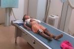 Phụ huynh 'tố' nhà trường thờ ơ khi học sinh bị cửa sắt đè gãy xương: Hiệu trưởng lên tiếng
