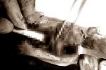 Cứu sống nam thanh niên bị đâm vào cổ, mất máu nặng