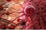 Những bí quyết tuyệt vời đẩy lùi ung thư