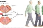 Dấu hiệu cho thấy bệnh Parkinson có thể chữa trị được