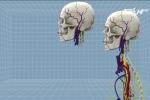 Bác sỹ tuyên bố ghép đầu người thành công bị chỉ trích dữ dội