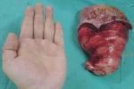 Cụ bà có chiếc lưỡi lớn nhất Việt Nam được phẫu thuật cắt bỏ thành công