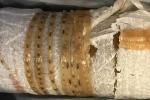 Nghiện sushi, người đàn ông phát hoảng khi thấy sán dài cả mét chui ra khỏi người