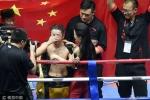 Nhà vô địch quyền anh Trung Quốc bị mù đột ngột