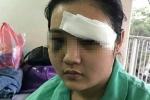 Cô gái bị 20 thanh niên truy sát, cắt tai ở TP.HCM: Công an triệu tập 14 nghi can