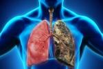 Bệnh ung thư phổi của diễn viên Mai Phương: Khó phát hiện, diễn biến nhanh