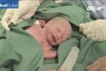 Em bé đầu tiên ở Mỹ ra đời từ người mẹ được cấy ghép tử cung