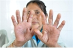 Quảng Ngãi: Nhiều người tái mắc 'bệnh lạ' cực kỳ nguy hiểm