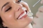 Nguy cơ rước thêm vô số bệnh vì tự gắn răng khểnh làm duyên