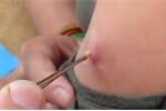 Clip rút ấu trùng béo mầm trong người như phim kinh dị, xem dựng tóc gáy
