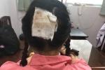 Uốn tóc đón Tết, người phụ nữ bị hoại tử da đầu vĩnh viễn, không thể phục hồi
