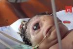Bố mẹ đau đớn tột độ khi con chào đời chỉ có 1 mắt giữa trán