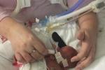 Nghẹn ngào câu chuyện người mẹ sinh non ở tuần 29 với 30% cơ hội sống sót