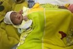 Nhỏ sữa mẹ để chữa đau mắt, em bé suýt thủng giác mạc