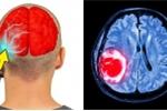 Khoa học chứng minh sóng di động ảnh hưởng tới não ra sao?