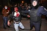 Video: Đụng độ lớn ở Ukraine, hàng chục người thương vong