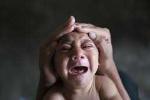 Hai trẻ đầu tiên sinh ra bị đầu nhỏ do virus Zika ở Đông Nam Á