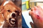 Trong vòng 7 năm, lần đầu tiên TP.HCM có người chết vì bị chó dại cắn