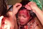 Bám theo chồng đến nhà 'bồ nhí', người phụ nữ bị đánh trọng thương
