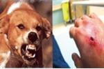 Bị chó cắn chủ quan không tiêm phòng, bác sĩ thú y chết thương tâm